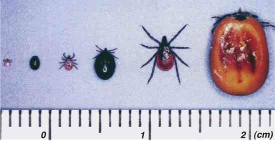 lyme 190123 fig - ジャスティン・ビーバーがライム病を告白。原因となるマダニ対策として効果的な方法は?